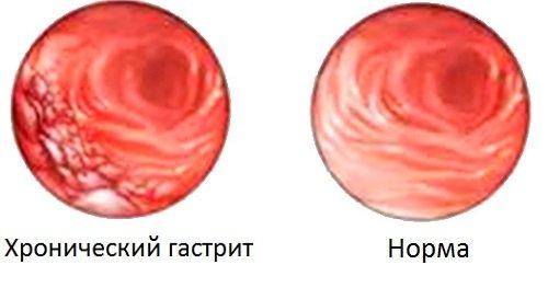 krónikus gastritis és fogyás