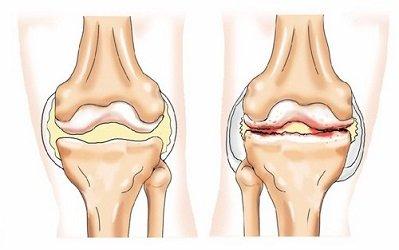 artrózis térd deformációval)